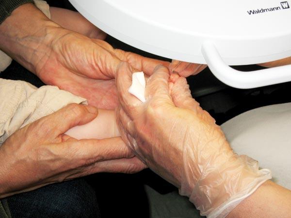 Als gribok auf der Haut während der Schwangerschaft zu behandeln